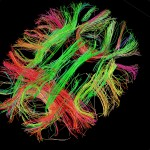 White matter fiber architecture of the brain. Measured from diffusion spectrum imaging (DSI). Shown is a thick axial section including the cingulum, forceps, and short association pathways. The fibers are color-coded by direction: red = left-right, green = anterior-posterior, blue = through brain stem. www.humanconnectomeproject.org