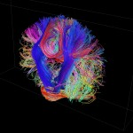 White matter fiber architecture of the brain. Measured from diffusion spectrum imaging (DSI). Shown is a thick coronal section of tracks  through the corticospinal tract. The fibers are color-coded by direction: red = left-right, green = anterior-posterior, blue = through brain stem. www.humanconnectomeproject.org