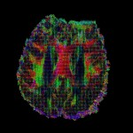 HARDI (high-angular resolution diffusion imaging), Axial view.The tensor can be visualized as an ellipsoid in 3D space, showing fluid mappings and brain connectivity. Image by David Shattuck, PhD. and Paul M. Thompson, PhD.