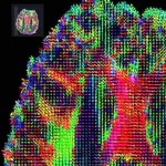 HARDI (high angular resolution diffusion imaging) tracks show aligned brain DTI data across subjects with a 3D fluid transformation, optimizing a measure based on information theory. Image by David Shattuck, PhD. and Paul M. Thompson, PhD.