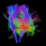 White matter fiber architecture of the brain. Measured from diffusion spectrum imaging (DSI). Shown are brainstem projections to cortex and the corpus callosum. The fibers are color-coded by direction: red = left-right, green = anterior-posterior, blue = through brain stem. www.humanconnectomeproject.org