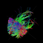 White matter fiber architecture of the brain. Measured from diffusion spectrum imaging (DSI). Shown are frontal projection fibers including the cingulum, anterior thalamic radiation, and forceps minor. The fibers are color-coded by direction: red = left-right, green = anterior-posterior, blue = through brain stem. www.humanconnectomeproject.org