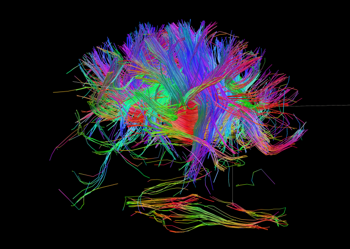 white matter fiber architecture of the brain measured from diffusion spectral imaging dsi
