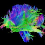 White matter fiber architecture from the Connectome Scanner dataset. The fibers are color-coded by direction: red = left-right, green = anterior-posterior, blue = ascending-descending (RGB=XYZ). www.humanconnectomeproject.org