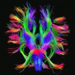 White matter fiber architecture of the brain. Measured from diffusion spectrum imaging (DSI). Shown is a complex combination of brainstem pathways, thalamic radiation, and short association fibers. The fibers are color-coded by direction: red = left-right, green = anterior-posterior, blue = through brain stem. www.humanconnectomeproject.org